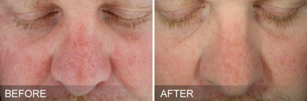Hydra Facial Before & After Okemos, MI