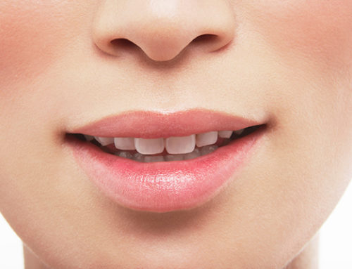 Improve Signs of Aging Around Your Mouth and Lips With Juvederm