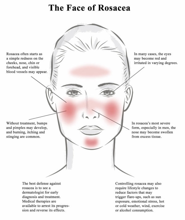 Treat Rosacea And Redness Okemos Halo Skin Rejuvenation East